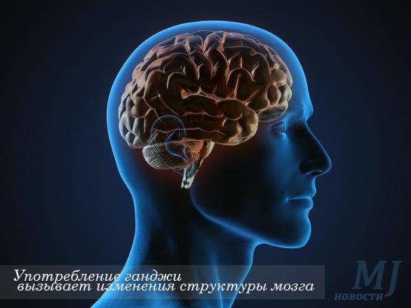 Употребление конопли вызывает изменения в мозге